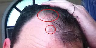 New Psoriasis Treatment For Scalp